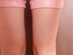 足も、太腿も細くなっています02